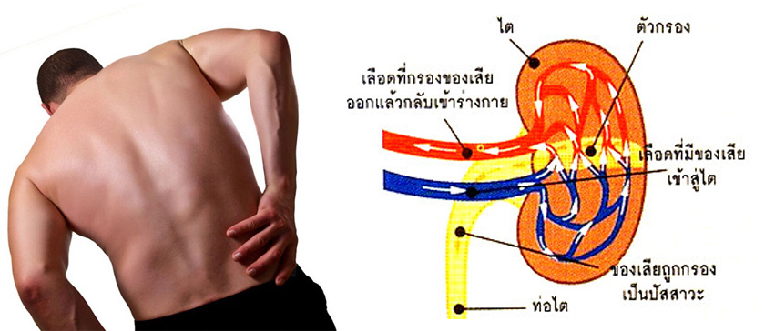umi-ฉี่มีฟอง-ปวดหลัง-บวม-เหนื่อยง่าย-ค่าไตสูง-ไตเริ่มเสื่อม-ฟอกไต-ไม่อยากฟอกไต-ยารักษา-โรคไต