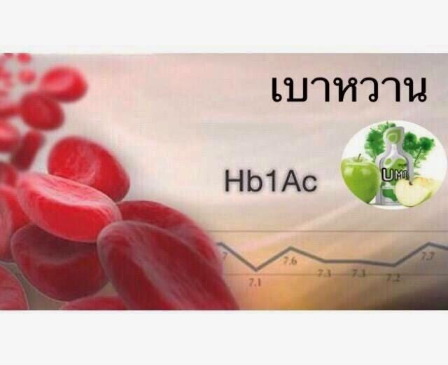 gelsociety-Kidney-Fucoidan-agel-umi-มะเร็ง-อาเจล-เอเจล-รักษา-ราคาถูก-ราคาสมาชิก-สมัครทำธุรกิจ-ไตเสื่อม-อูมิ-เบาหวาน-ajel-เบาหวาน-คีโม-เพิ่มเม็ดเลือดขาว-cea-กินข้าวไม่ได้-อาหารเสริม-เก๊าส์-umi-grn-agel-uric-acid-อาเจล-ข้อบวม-ยูริค-ยูริก-เก๊าท์-เก๊า-รักษา-ยังไง-หายไหม-อูมิ-อะไรดี-อาหารเสริม-เก๊าท์-ลดกรดยูริค-ปวดข้อ-ปวดเข่า-กรดยูริคสูง-umi-grn-agel-โรคเก๊าท์-ซื้อเอง-ออฟฟิศ-กรุงเทพ-ราคาสมาชิก-สมัคร-ตัวแทน-ทำธุรกิจ-แม่ทีม-ผู้นำระดับสูง-ไตเสื่อม-ไตวาย-ฟอกไต-ไตเรื้อรัง-กินอะไรดี-ผลไม้-ผัก--เจ-จอย-ริน-24gel-gel-treat อาหารเสริม-อะไรดี-เอเจล-umi-agel-ไตเสื่อม-ยารักษาไต-อาหารเสริม-บำรุงไต-อาการ-โรคไต-หายได้ไหม-อาการ-โรคไต-รักษาได้ไหม-รักษาหายไหม-ยารักษาโรคไต-umi-เห็ดหลินจือแดง